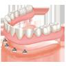 """<a href=""""http://www.clinicaeziocosta.it/odontoiatria/"""">Odontoiatria</a>"""
