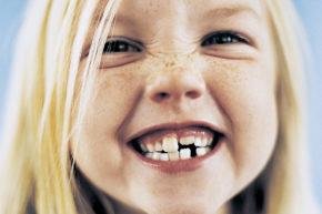 Ortodonzia, denti allineati