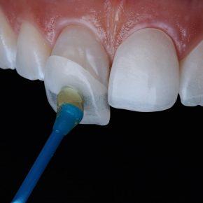 faccette-dentali